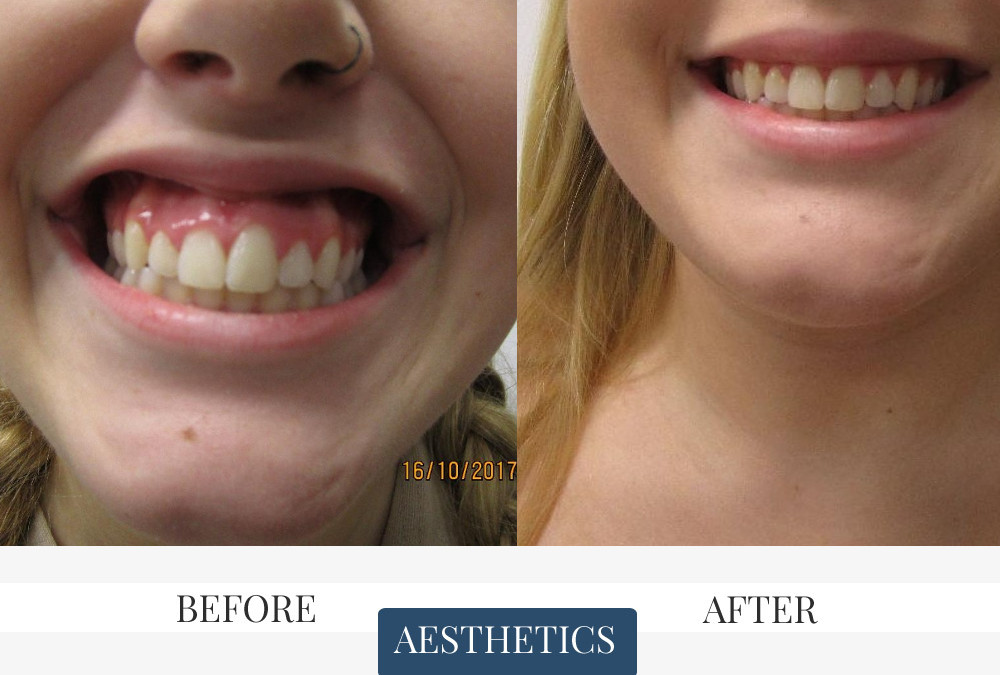 Gummy Smile Before & After