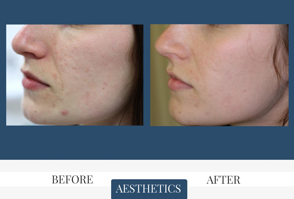 Laser Skin Tightening Before & After