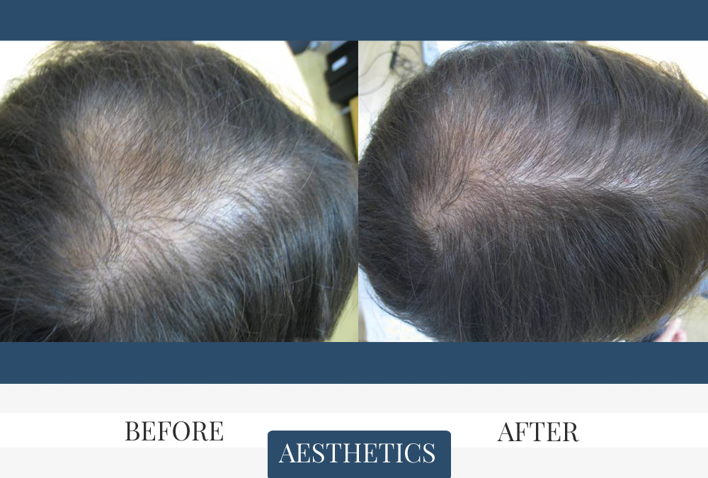 Mesotherapy Before & After
