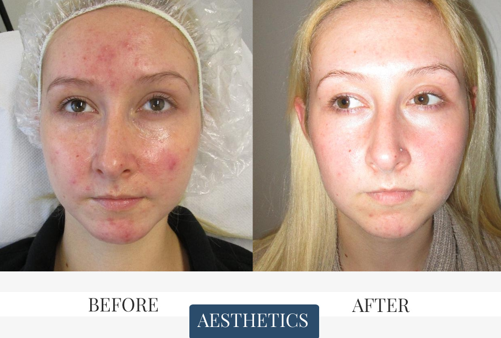 ND Peels before and after to treat acne