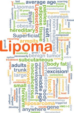 lipoma skin lesion treatment