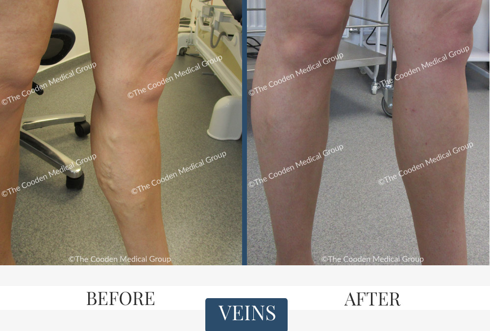 Endovenous Laser Ablation Before & After