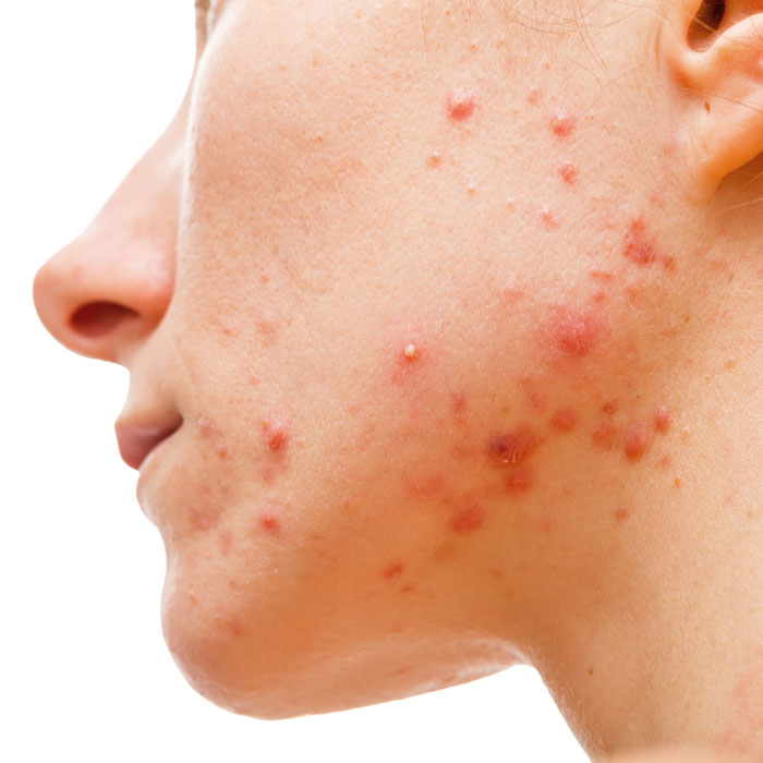 acne scar treatment can help restore the appearance of the skin and reduce inflammation