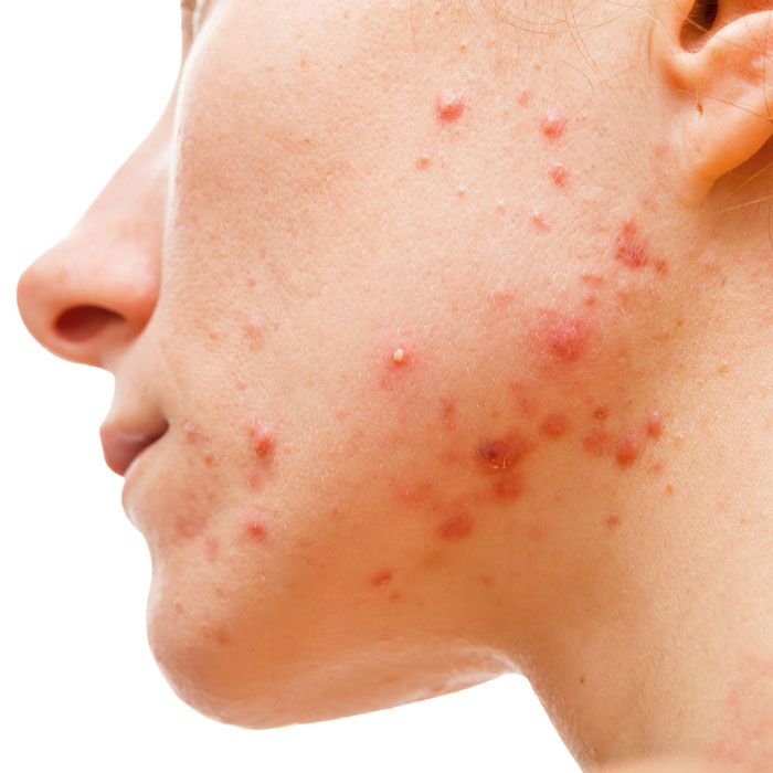 treatment for facial and body acne can include chemical peels and laser treatment