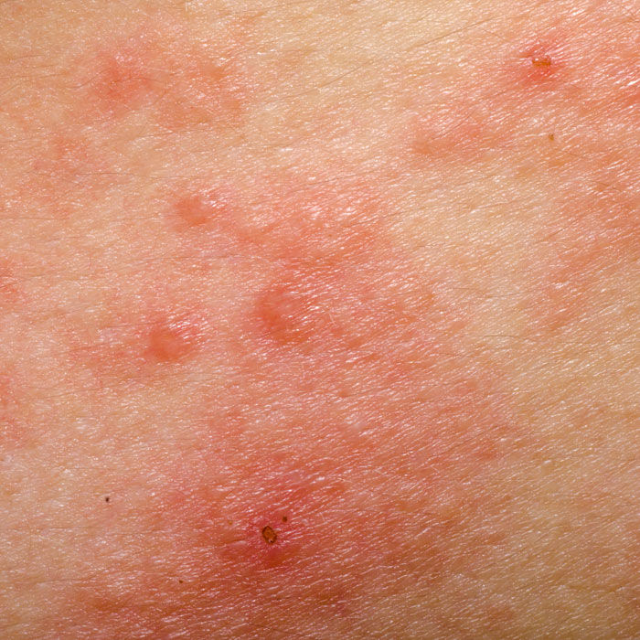 acne is a common skin complaint, experienced by most people