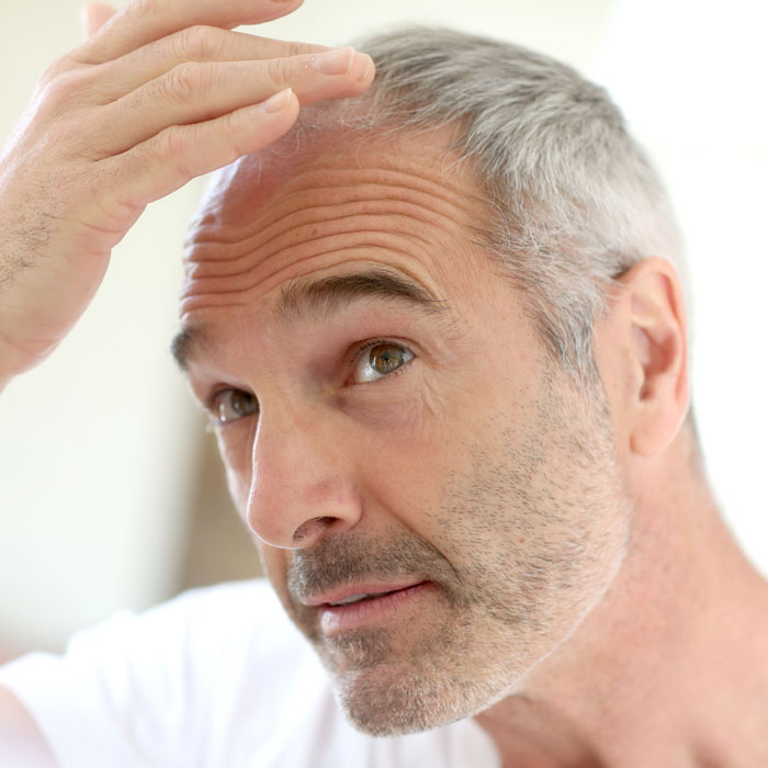 hair loss, or a balding scalp, effects both men and women