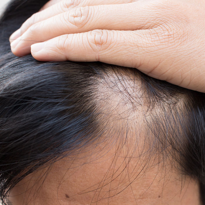 hair loss treatment is available at the Cooden Medical Group