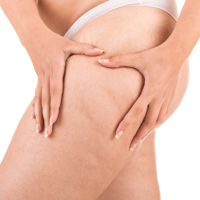cellulite can cause many people to be self conscious