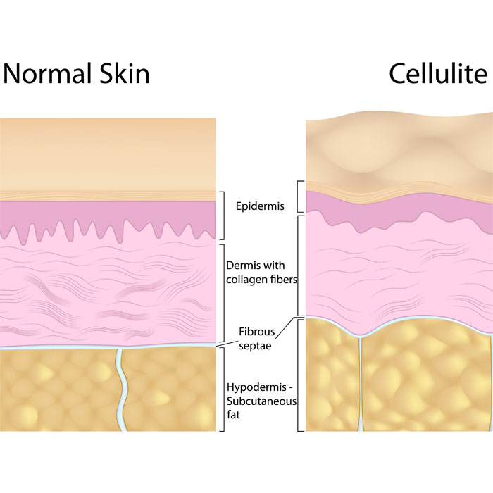 cellulite can be treated with Mesotherapy