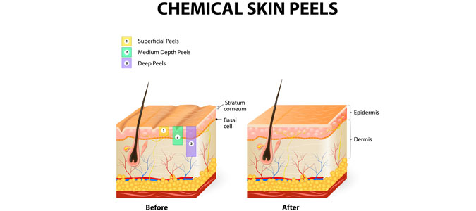 chemical peels can treat acne, scarring and wrinkles