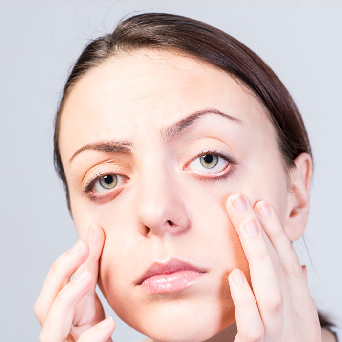 treatment for crows feet around the eyes can restore youthfulness to the face