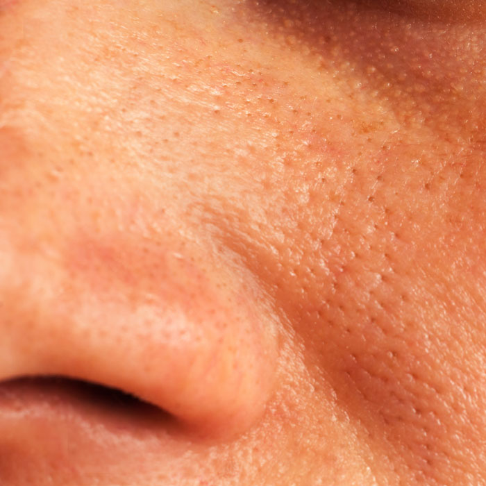enlarged pores can be treated at the Cooden Medical Centre
