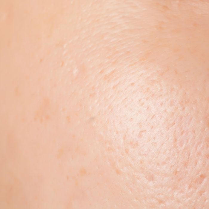 enlarged pores can be tightened with chemical peels, mesotherapy, prp therapy or prescribed topical homecare treatments