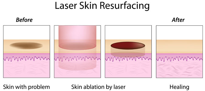 diagram of how laser skin ablation works