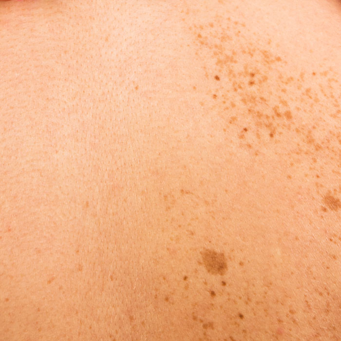 hyperpigmentation is often caused by sun damage