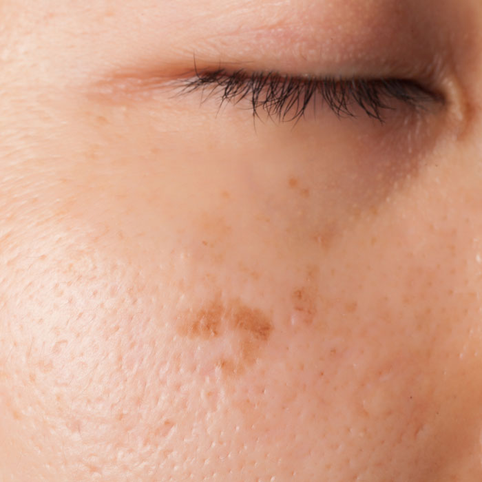 hyperpigmentation on the skin can be treated with chemical peels or Dermalux LED light rejuvenation