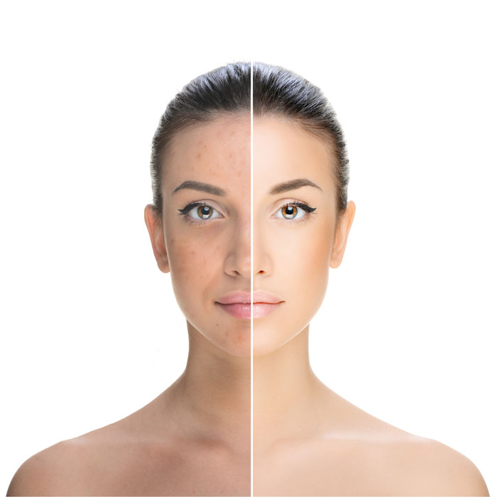 treatment for hyperpigmentation and sun damage is available at The Cooden Medical Centre