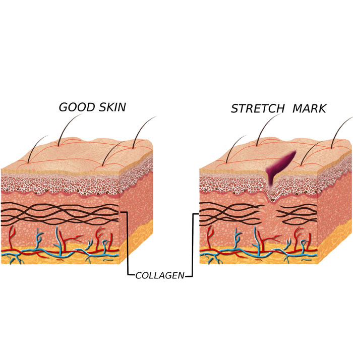 stretch marks are caused by a tear in the collagen of the skin