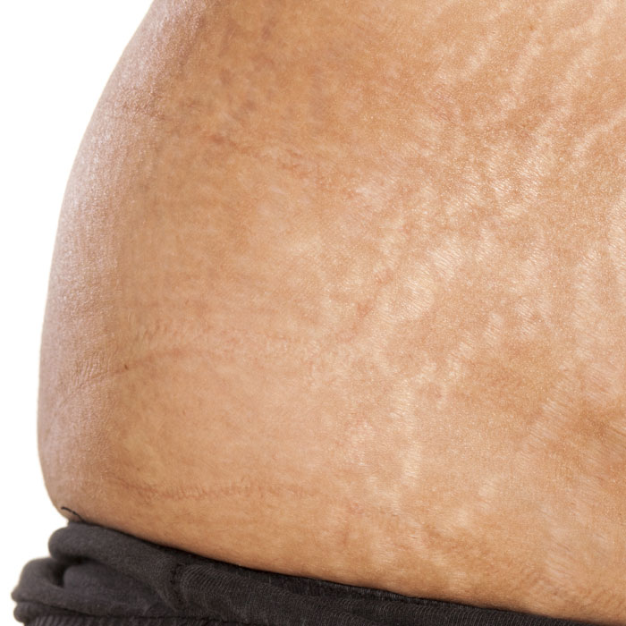 the appearance of stretch marks can be reduced with Mesotherapy, laser skin treatments or a range of medical treatments