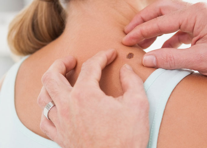 neck treatments include the removal of skin lesions, such as warts and moles