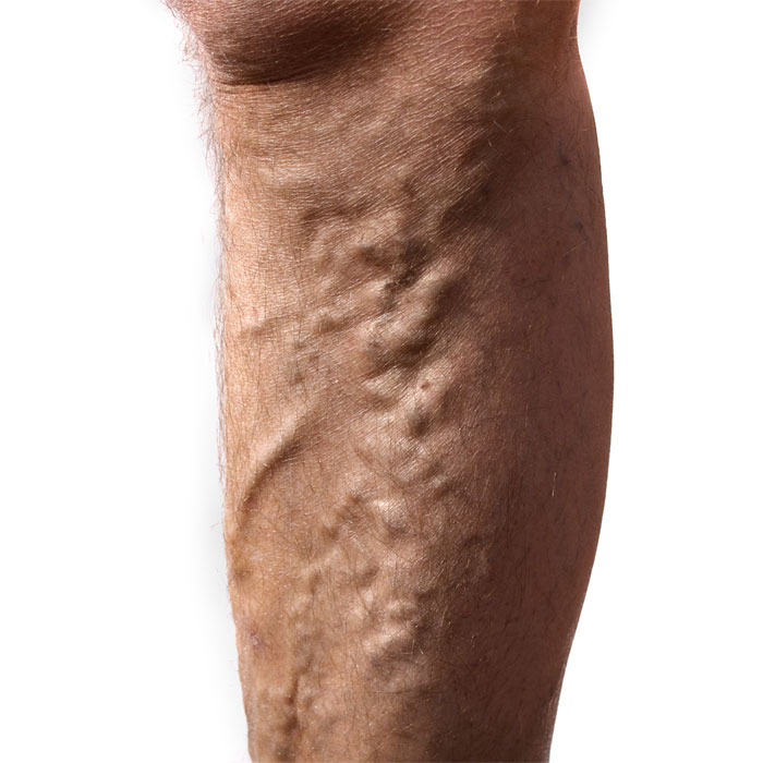 avulsions or stab phlebectomy effectively treats varicose veins