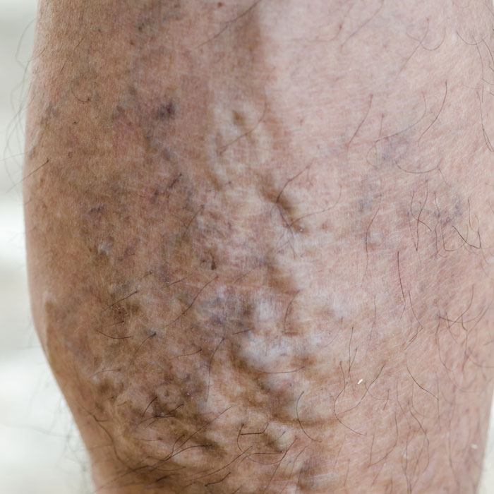 The Cooden Medical Group offer foam sclerotherapy for the effective treatment of varicose veins