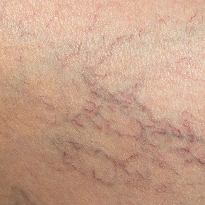 spider veins, or thread veins are small, superficial veins, usually found on the legs