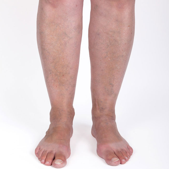 varicose veins are swollen, bluish veins that are enlarged or twisted beneath the surface of the skin