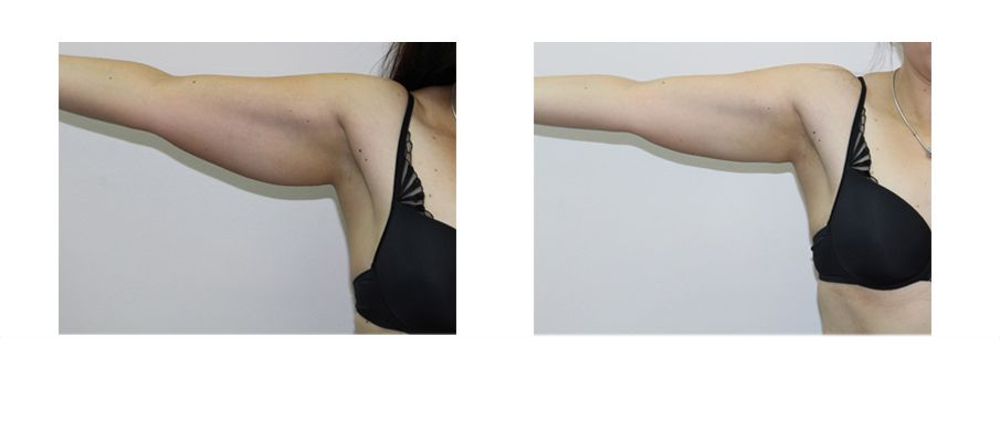 Fat Freezing - Cryolipolysis in Bexhill - The Cooden Medical Group