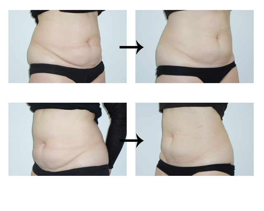 Female belly fat freezing