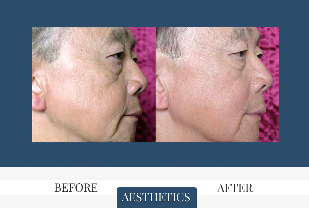 Laser Skin Tightening for men before and after