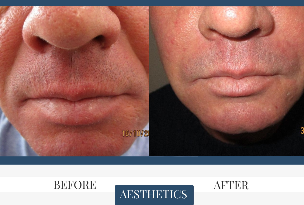 Nasolabial Filler before and after